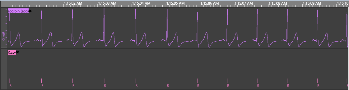 ECG signal with detected R peaks