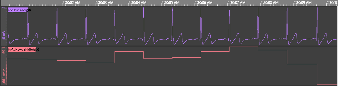 ECG signal with beat by beat heart rate